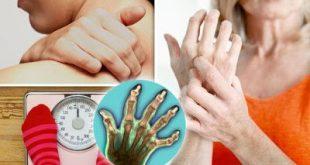 Ρευματοειδής Αρθρίτιδα: βέλτιστη θεραπεία και ποιοτικότερη ζωή με τη συνεργασία γιατρού – ασθενούς