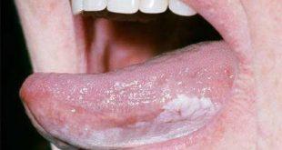 Λευκοπλακία. Προκαρκινική βλάβη στο στόμα, που πρέπει να αφαιρείται