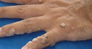 Οι μυρμηγκιές κολλάνε; Τι σχέση έχουν με το ΗPV, ποιοι κινδυνεύουν και πώς αντιμετωπίζονται; (φωτογραφίες)