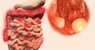 Πολύποδες παχέος εντέρου. Συμπτώματα, ποιοι κινδυνεύουν και ποια η κατάλληλη διατροφή για πρόληψη σχηματισμού τους;