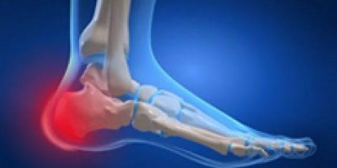 Πόνος στη φτέρνα από φλεγμονή, μετά από άθληση ή έντονη δραστηριότητα. Αποφυσίτιδα πτέρνας - νόσος Sever
