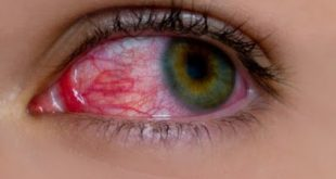 Αίμα στο μάτι από σπασμένα αιμοφόρα αγγεία (υπόσφαγμα)