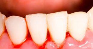 Γιατί ματώνουν τα ούλα; Γιατί κουνιούνται τα δόντια;